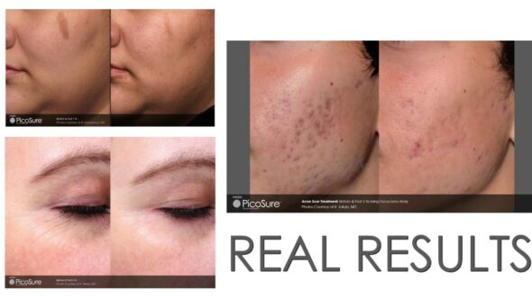 Picosure  laser for a refreshed look!